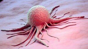 Профилактика и лечение онкологических заболеваний