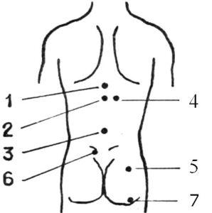 Точки для массажа при остеохондрозе поясничного отдела позвоночника