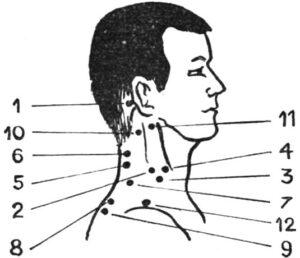 Точки для массажа при шейном остеохондрозе
